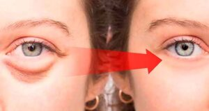 Home Remedy to Cure Dark Circles